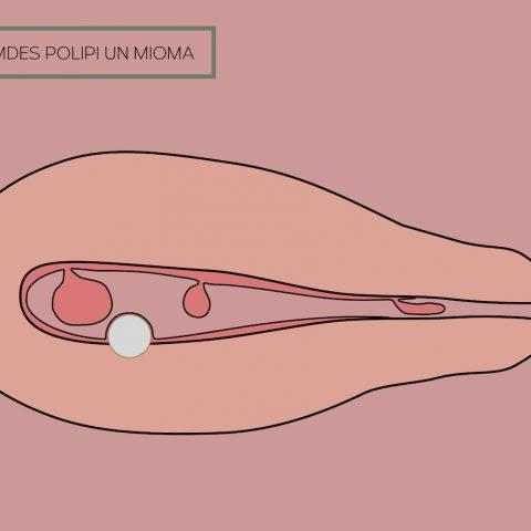 Dzemdes dobuma polips